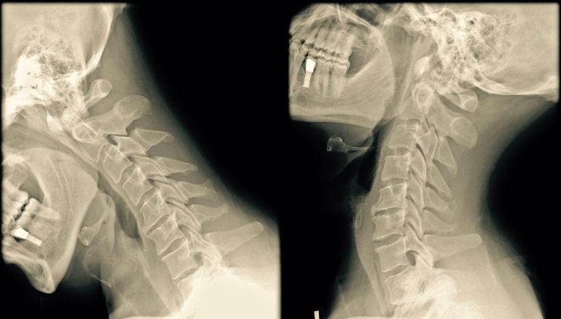 radiographie cervicale avec mouvement